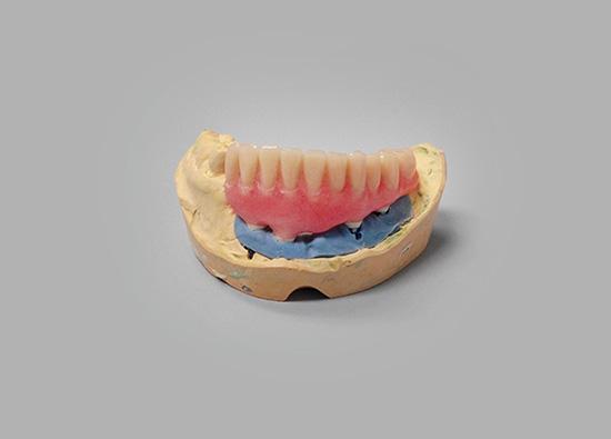 implant-hybrid-prosthesis-01
