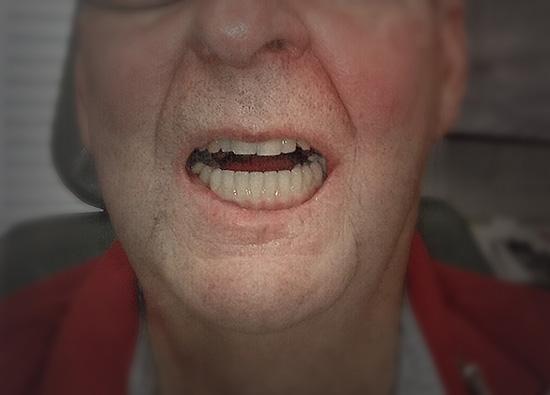 implant-hybrid-prosthesis-03