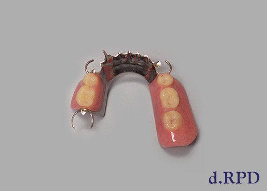 partial-dentures-02