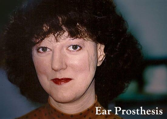 Oro-Facial-Center-Facial-Prostheses-_0000_Aurocular-Prothesis-A-01