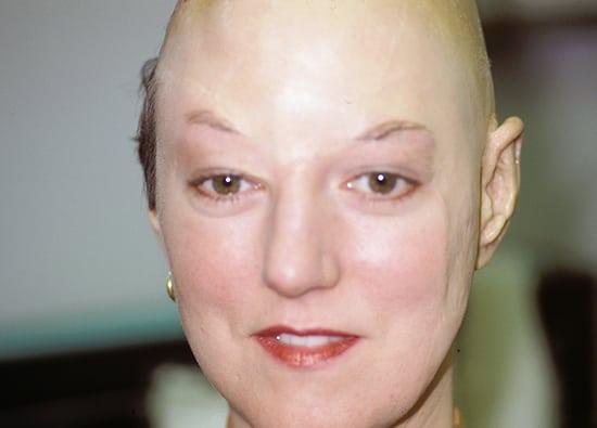 Oro-Facial-Center-Facial-Prostheses-_0001_Aurocular-Prothesis-A-02