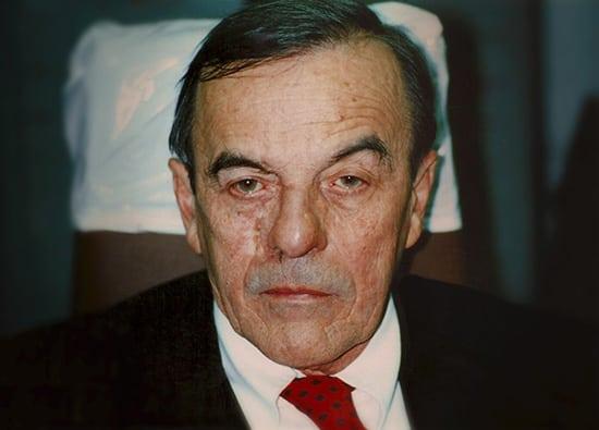 Oro-Facial-Center-Facial-Prostheses-_0014_Nasal-Prothesis-A-01