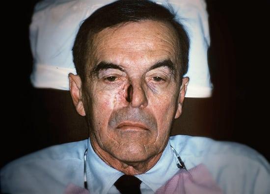 Oro-Facial-Center-Facial-Prostheses-_0015_Nasal-Prothesis-A-02