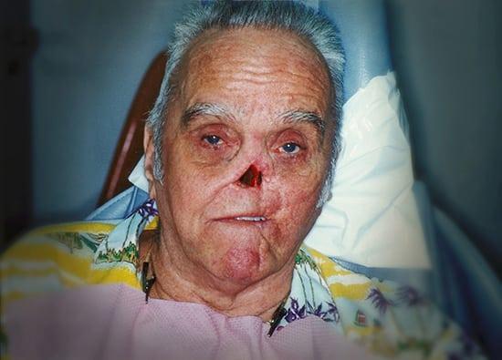 Oro-Facial-Center-Facial-Prostheses-_0017_Nasal-Prothesis-B-02