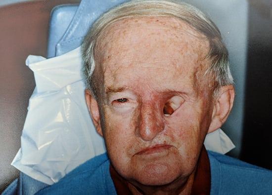 Oro-Facial-Center-Facial-Prostheses-_0019_Orbital-Prothesis-A-02