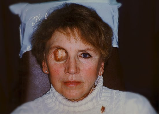 Oro-Facial-Center-Facial-Prostheses-_0021_Orbital-Prothesis-B-02