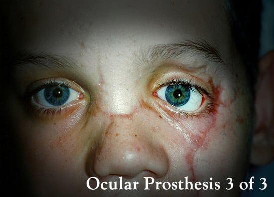 Oro-Facial-Center-Facial-Prostheses-_0024_Miscellaneous-Ocular-Prosthesis-A-03